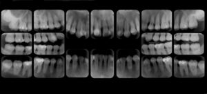 serie-periapical